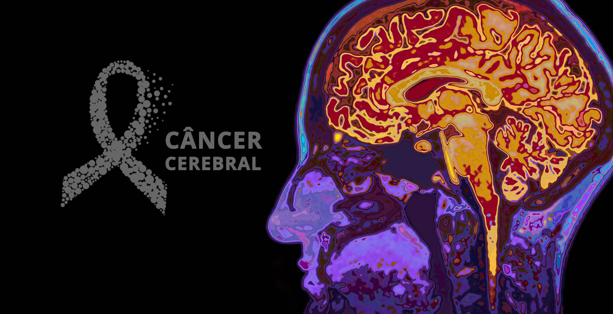 001 Cancer Cerebral